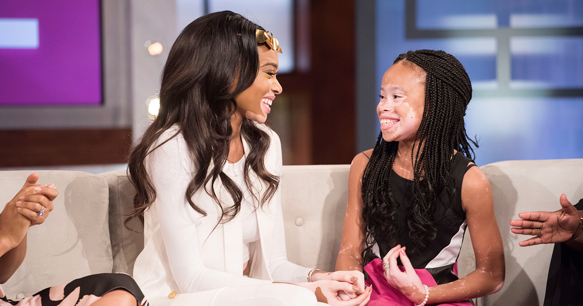 Image result for Model With Vitiligo Surprises 10-Year-Old Fan Who Has the Same Condition